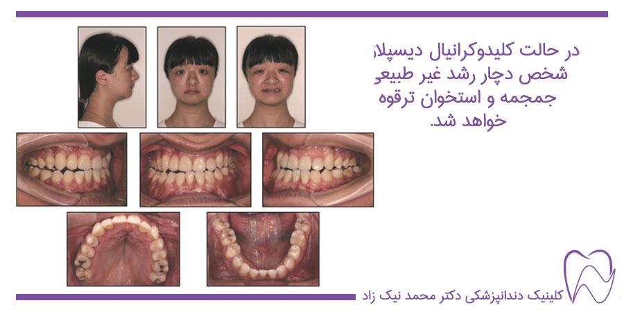 دیسپلازی دندان