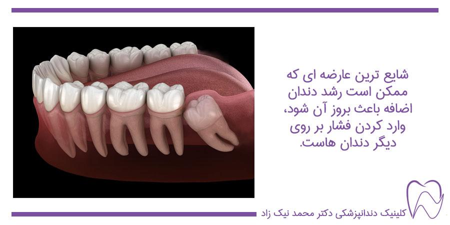 علت دندان اضافه