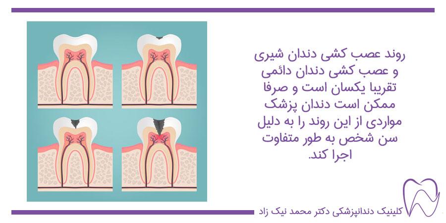 مراحل عصب کشی دندان شیری