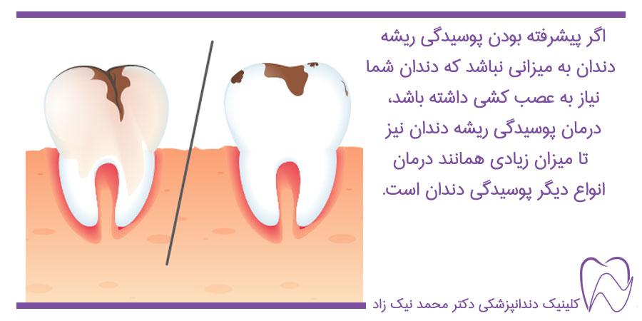 درمان ریشه پوسیده دندان